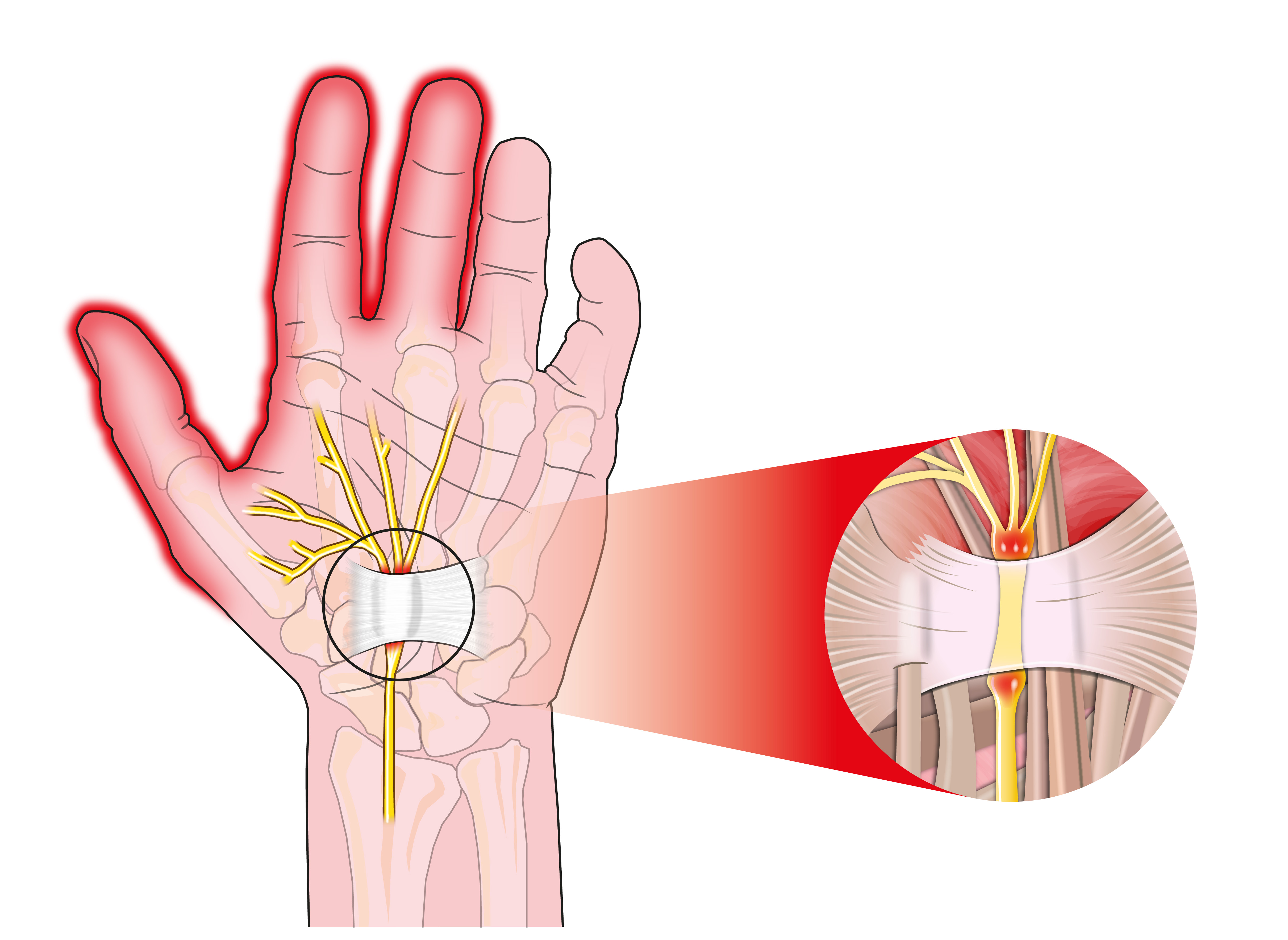 Carpal Tunnel Syndrome Health Center